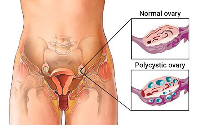 Polycystic ovarian syndrome (PCOS)- Fertility check